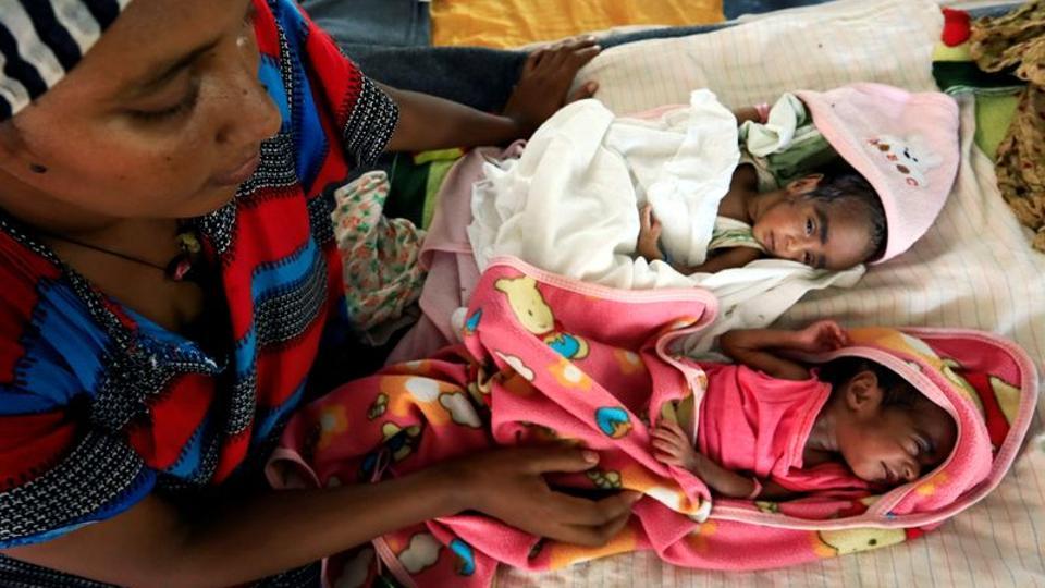 Tigray - fame come arma da guerra - malnutrizione sui bambini