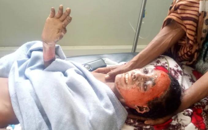 Kisanet Gebremicheal ha solo 13 anni e soffre di un immenso dolore per le ustioni